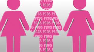 PCOS-renames